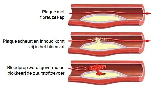 Atherosclerose - plaque