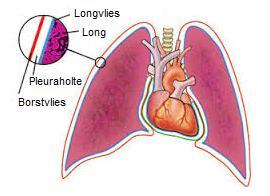 Pleuritis oftewel longvliesontsteking