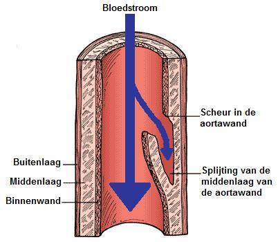 Aortadissectie