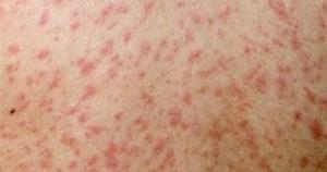 Mazelen symptomen - rode vlekkerige huiduitslag