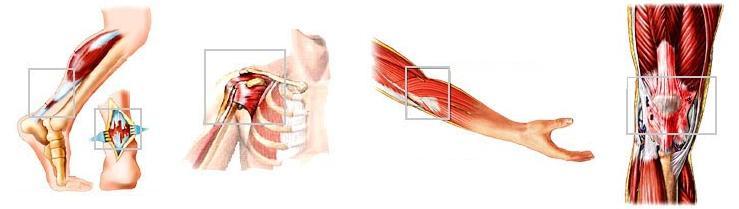 Peesontsteking - tendinitis - schouder hiel elleboog knie