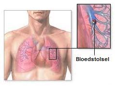 Longembolie - bloedstolsel